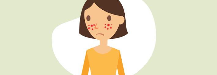 Porque temos rinite alérgica?