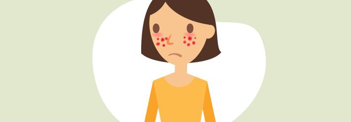 O que é urticária crónica espontânea idiopática