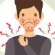 sintomas da urticária e como aliviar
